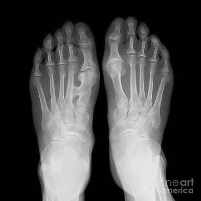 Fused Photograph - Fused Metatarsals, X-ray by Science Photo Library