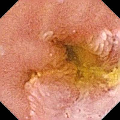 Endoscopy Photograph - Gastrointestinal Tumour by Gastrolab