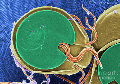 Photograph - Giardia Muris Sem by Science Source