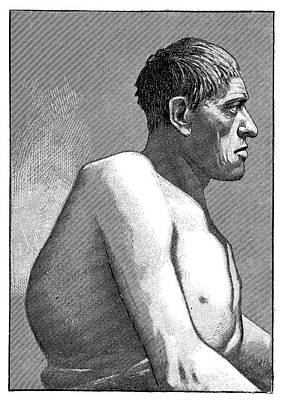 Gigantism And Acromegaly Art Print by Science Photo Library