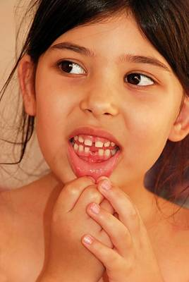 Healthcare And Medicine Photograph - Girl With Missing Tooth by Photostock-israel
