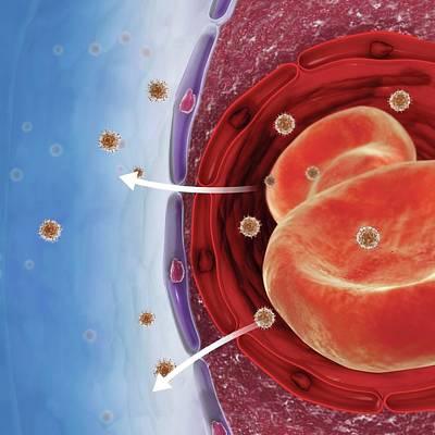 Biomedical Illustration Photograph - Haemodialysis by Dorling Kindersley/uig