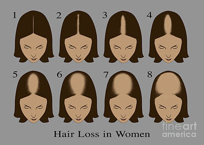 Hair Loss Art Print by Gwen Shockey