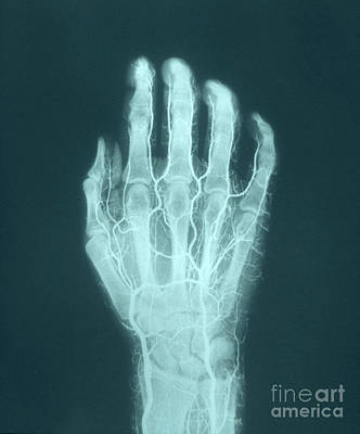 Photograph - Hand Arteriogram by VideoSurgery