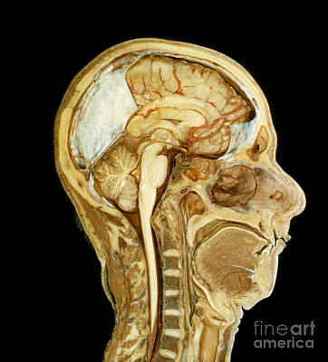 Head And Neck, Mid Sagittal Section Art Print by VideoSurgery