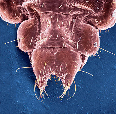 Human Head Photograph - Head Louse by Natural History Museum, London