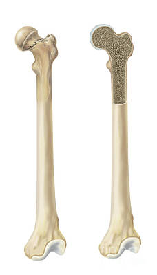 Human Joint Digital Art - Head Of Femur Fracture by TriFocal Communications