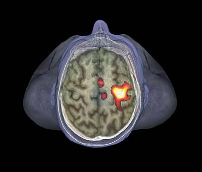 Healthy Brain Art Print by Zephyr