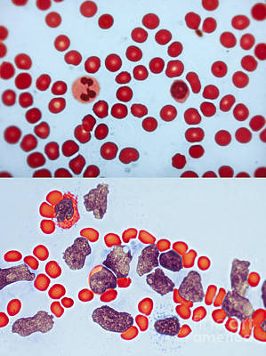 Photograph - Healthy  Leukemia Blood Comparison by Spencer Sutton
