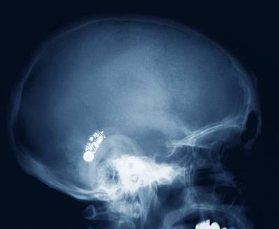 Hearing Aid, X-ray Art Print
