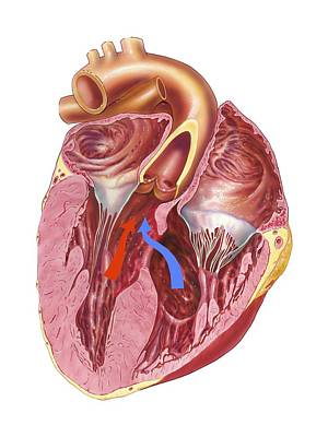 Heart Chamber Wall Defect, Artwork Art Print