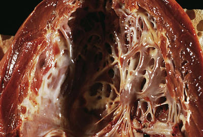 Heart Fibroelastosis Art Print by Cnri/science Photo Library