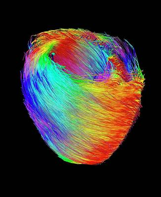 Heart Muscle Fibres Art Print