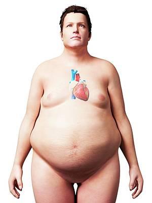 Heart Of Overweight Man Art Print