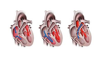 Contraction Photograph - Heart Pumping by Henning Dalhoff
