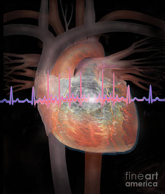 Photograph - Heart With An Erratic Ekg by Jim Dowdalls