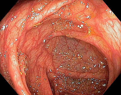 Endoscopy Photograph - Hepatic Flexure Of The Colon by Gastrolab