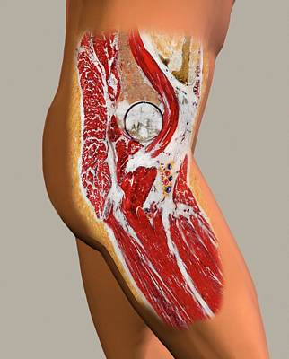 Lateral Photograph - Hip Anatomy by John T. Alesi