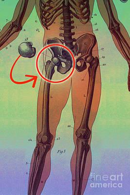 Hip Replacement Art Print by Dennis D Potokar