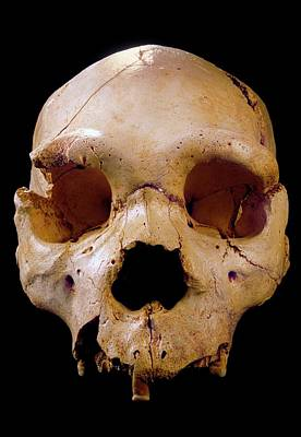 Homo Heidelbergensis Skull (cranium 5) Art Print by Javier Trueba/msf
