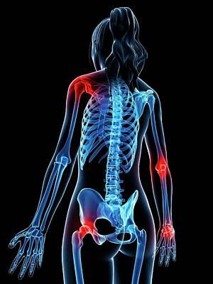 Human Joint Photograph - Human Anatomy Of Inflamed Joints by Sebastian Kaulitzki
