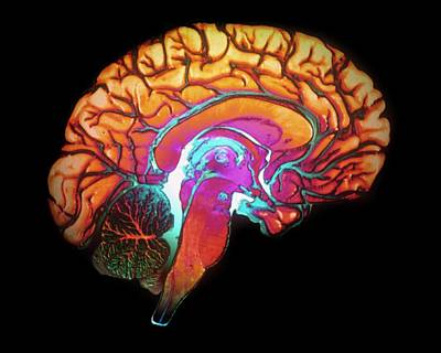False-colored Photograph - Human Brain by Gjlp/cnri