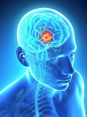 Human Brain Tumor Art Print by Sebastian Kaulitzki