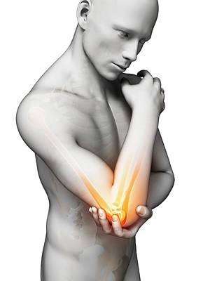 Biomedical Illustration Photograph - Human Elbow Pain by Sebastian Kaulitzki