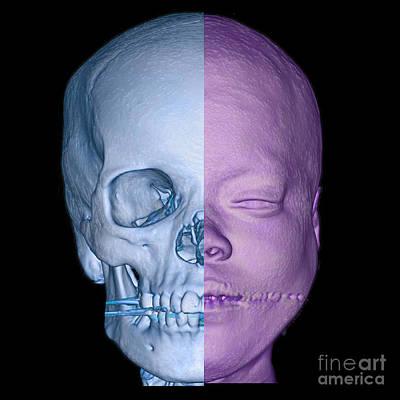 Reconstruction Photograph - Human Face And Skull Enhanced 3d Ct Scan by Living Art Enterprises