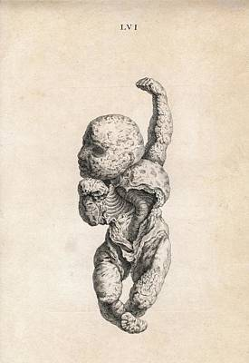 18th Century Photograph - Human Foetus by American Philosophical Society