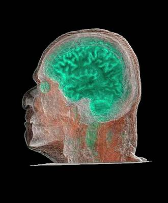 Human Head Photograph - Human Head And Brain by Anders Persson, Cmiv