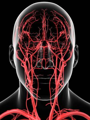 Human Head Photograph - Human Head Arteries by Sciepro