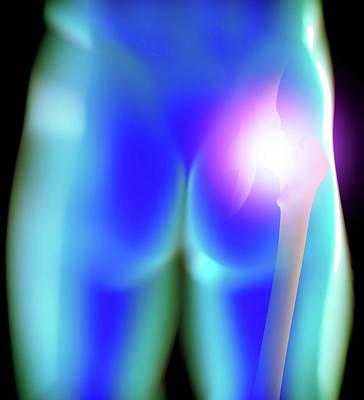Human Joint Photograph - Human Hip Joint by Science Artwork