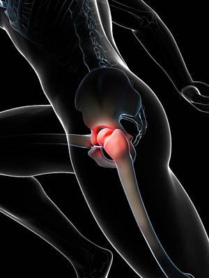 Biomedical Illustration Photograph - Human Hip Pain by Sebastian Kaulitzki