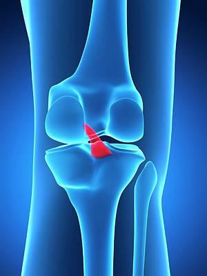 Biomedical Illustration Photograph - Human Knee Ligament by Sebastian Kaulitzki