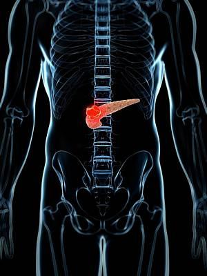 Human Pancreas Showing Tumor Art Print by Sebastian Kaulitzki