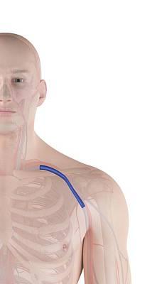 Human Shoulder Vein Art Print by Sciepro