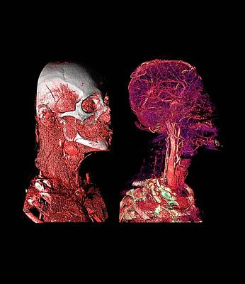 Human Head Photograph - Human Skull And Blood Vessels by Anders Persson, Cmiv