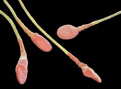 Human Sperm Cells Art Print by Steve Gschmeissner