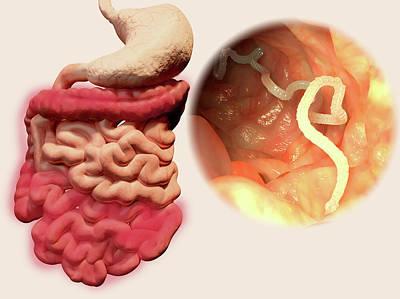 Human Tapeworm Infection Art Print