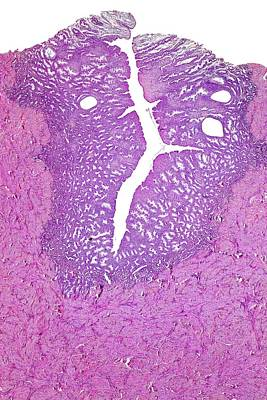 Human Uterus Print by Dr Keith Wheeler