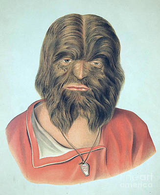 Photograph - Hypertrichosis 19th Century by Science Source