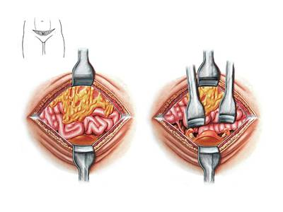 Hysterectomy Incision Art Print by John T. Alesi