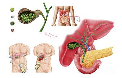 Incision Digital Art - Illustration Depicting Cholecystectomy by Stocktrek Images