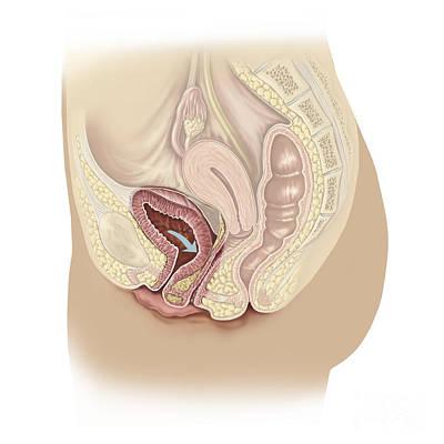 Urethra Digital Art - Illustration Of A Cystocele by TriFocal Communications