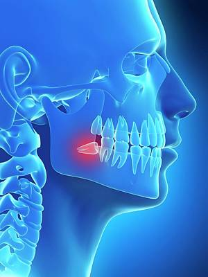 Biomedical Illustration Photograph - Impacted Wisdom Tooth by Sebastian Kaulitzki