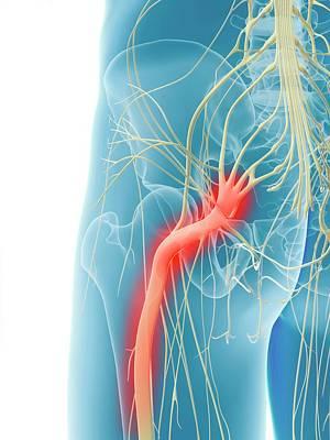 Inflamed Sciatic Nerve Art Print