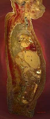 Autopsy Digital Art - Inside The Body by Thomas Woolworth