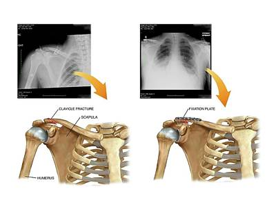 X-rays Of Photograph - Internal Fixation Of Broken Collar Bone by John T. Alesi
