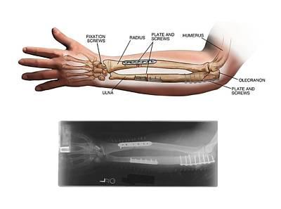 Internal Fixation Of Fractured Arm Bones Art Print
